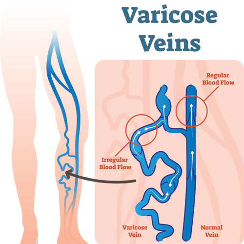 Varicose Vein Illustration